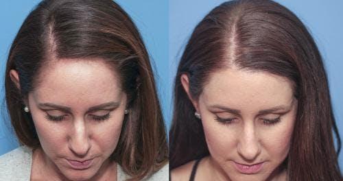 NeoGraft Hair Restoration Gallery - Patient 58214339 - Image 2