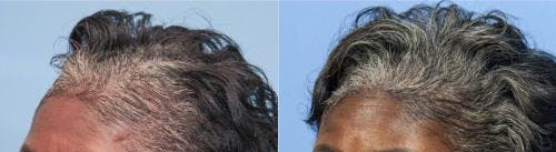 PRP Hair Treatments Gallery - Patient 58214340 - Image 2