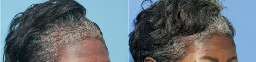PRP Hair Treatments Gallery - Patient 58214340 - Image 3