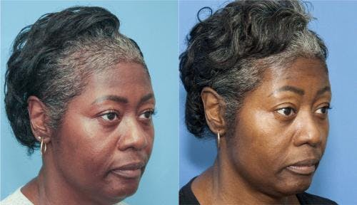 PRP Hair Treatments Gallery - Patient 58214340 - Image 4