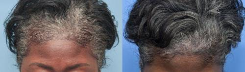 PRP Hair Treatments Gallery - Patient 58214340 - Image 5