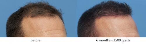 NeoGraft Hair Restoration Gallery - Patient 58214343 - Image 2