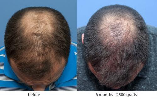 NeoGraft Hair Restoration Gallery - Patient 58214343 - Image 3