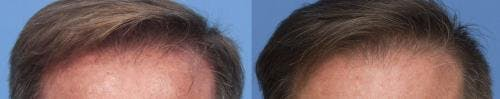 PRP Hair Treatments Gallery - Patient 58214342 - Image 1