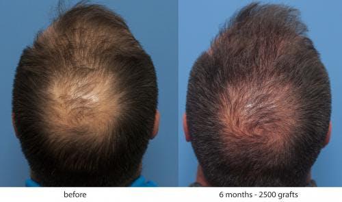 NeoGraft Hair Restoration Gallery - Patient 58214343 - Image 4