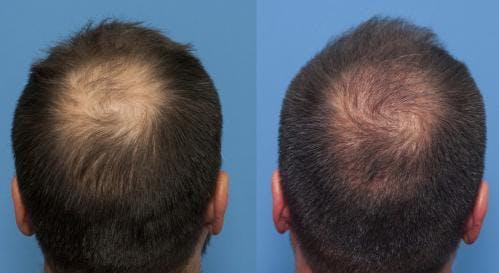 NeoGraft Hair Restoration Gallery - Patient 58214343 - Image 5