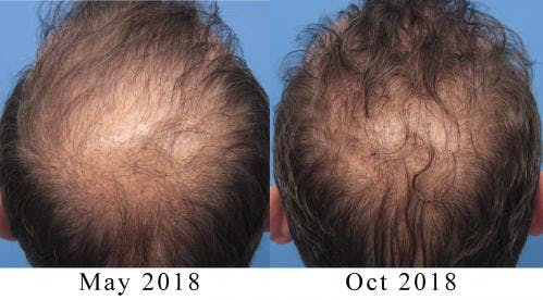 PRP Hair Treatments Gallery - Patient 58214344 - Image 1