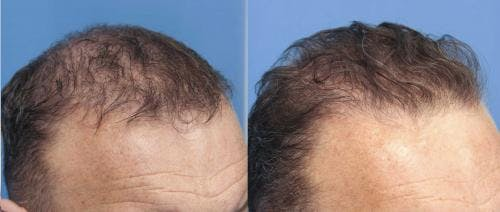 PRP Hair Treatments Gallery - Patient 58214344 - Image 2