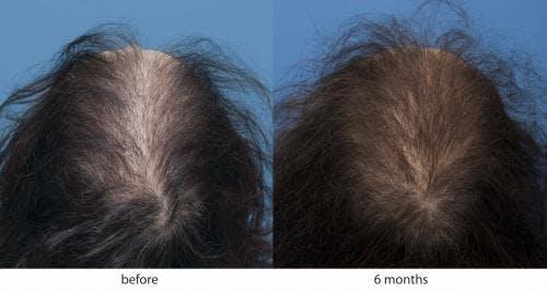 NeoGraft Hair Restoration Gallery - Patient 58214345 - Image 1