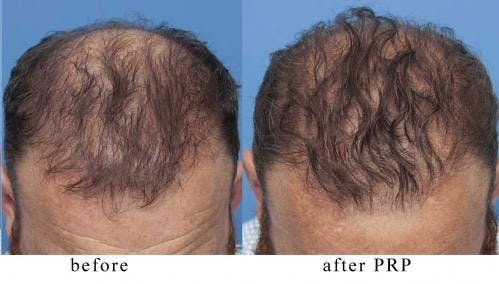 PRP Hair Treatments Gallery - Patient 58214344 - Image 3