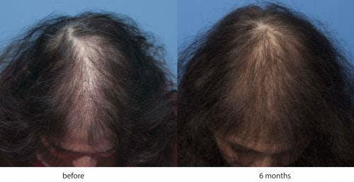 NeoGraft Hair Restoration Gallery - Patient 58214345 - Image 2