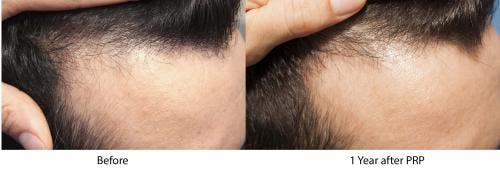 PRP Hair Treatments Gallery - Patient 58214347 - Image 1