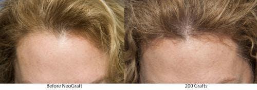 NeoGraft Hair Restoration Gallery - Patient 58214346 - Image 1