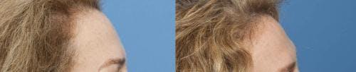 NeoGraft Hair Restoration Gallery - Patient 58214346 - Image 2