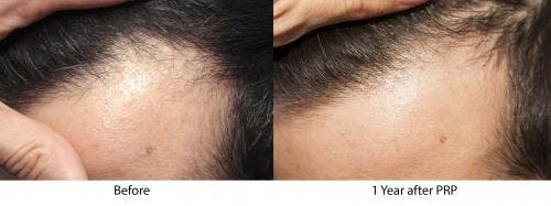 PRP Hair Treatments Gallery - Patient 58214347 - Image 2