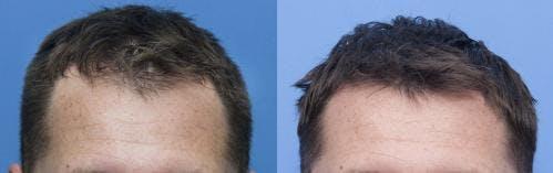 NeoGraft Hair Restoration Gallery - Patient 58214348 - Image 1