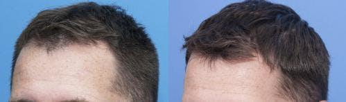 NeoGraft Hair Restoration Gallery - Patient 58214348 - Image 2