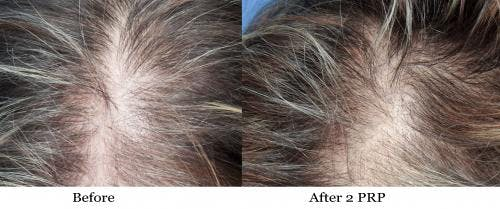 PRP Hair Treatments Gallery - Patient 58214349 - Image 2
