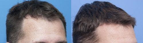 NeoGraft Hair Restoration Gallery - Patient 58214348 - Image 3