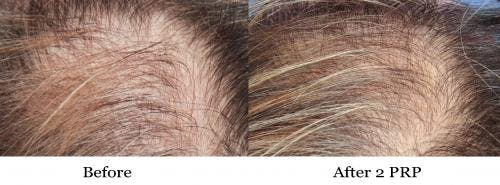 PRP Hair Treatments Gallery - Patient 58214349 - Image 3