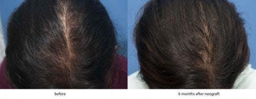 NeoGraft Hair Restoration Gallery - Patient 58214350 - Image 1