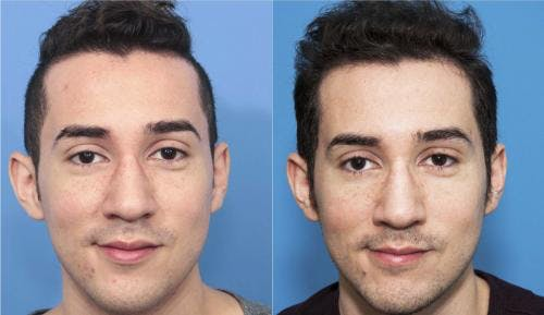 NeoGraft Hair Restoration Gallery - Patient 58214352 - Image 1