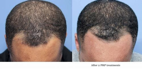 PRP Hair Treatments Gallery - Patient 58214351 - Image 2