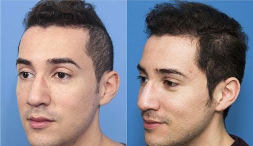 NeoGraft Hair Restoration Gallery - Patient 58214352 - Image 2