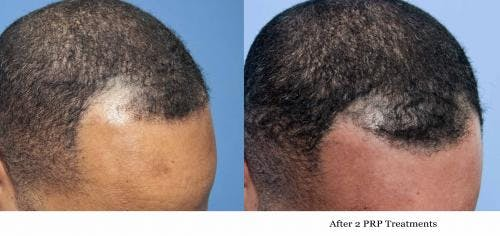 PRP Hair Treatments Gallery - Patient 58214351 - Image 3