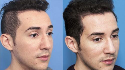 NeoGraft Hair Restoration Gallery - Patient 58214352 - Image 3
