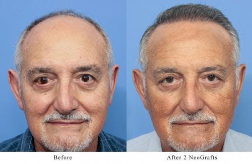 NeoGraft Hair Restoration Gallery - Patient 58214360 - Image 1