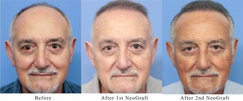 NeoGraft Hair Restoration Gallery - Patient 58214360 - Image 3