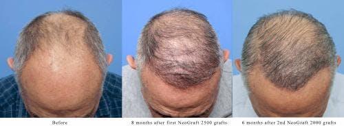 NeoGraft Hair Restoration Gallery - Patient 58214360 - Image 4