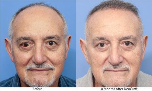 NeoGraft Hair Restoration Gallery - Patient 58214360 - Image 5