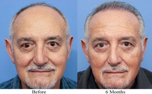 NeoGraft Hair Restoration Gallery - Patient 58214360 - Image 6