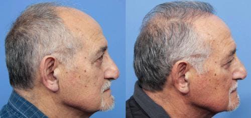 NeoGraft Hair Restoration Gallery - Patient 58214360 - Image 8
