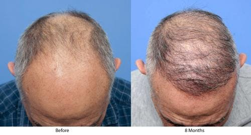 NeoGraft Hair Restoration Gallery - Patient 58214360 - Image 9