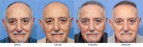 NeoGraft Hair Restoration Gallery - Patient 58214360 - Image 10