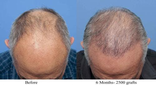 NeoGraft Hair Restoration Gallery - Patient 58214360 - Image 11
