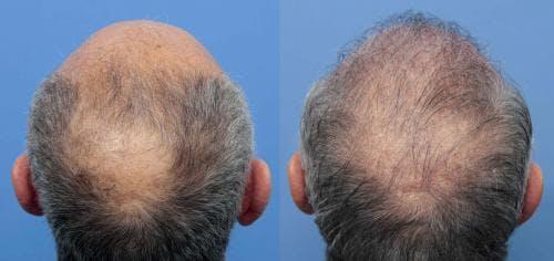 NeoGraft Hair Restoration Gallery - Patient 58214360 - Image 12