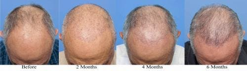 NeoGraft Hair Restoration Gallery - Patient 58214360 - Image 13