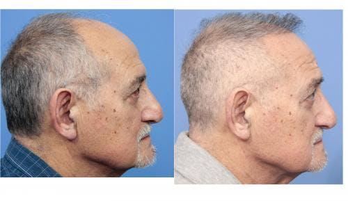 NeoGraft Hair Restoration Gallery - Patient 58214360 - Image 14