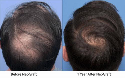 NeoGraft Hair Restoration Gallery - Patient 58214361 - Image 1