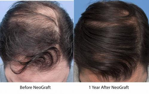 NeoGraft Hair Restoration Gallery - Patient 58214361 - Image 2