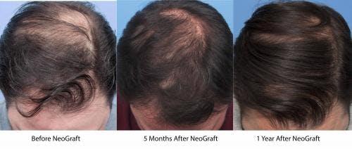 NeoGraft Hair Restoration Gallery - Patient 58214361 - Image 3
