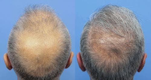 NeoGraft Hair Restoration Gallery - Patient 58214363 - Image 1