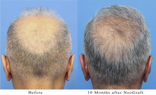 NeoGraft Hair Restoration Gallery - Patient 58214363 - Image 2