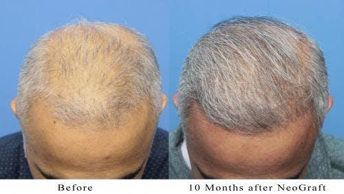 NeoGraft Hair Restoration Gallery - Patient 58214363 - Image 3