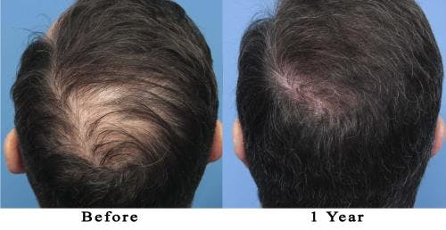 NeoGraft Hair Restoration Gallery - Patient 58214366 - Image 1