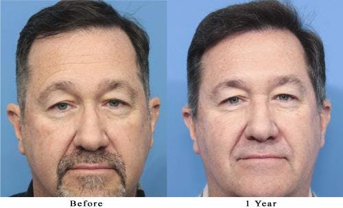 NeoGraft Hair Restoration Gallery - Patient 58214366 - Image 2